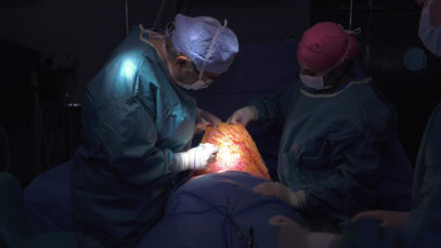 CIRUGIA DEL ABDOMEN – EXCELENCIA MEDICA TV