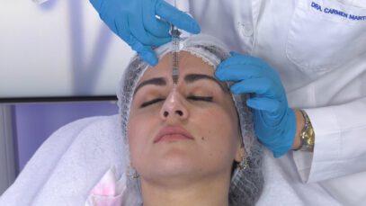 Estetica del perfil facial – Excelencia Medica TV