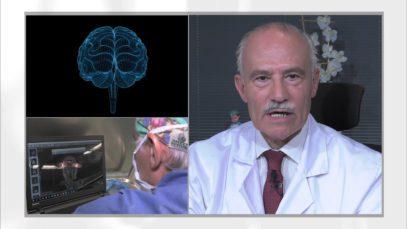 NEUROLOGIA – Cirugía de la epilepsia – Excelencia Medica TV
