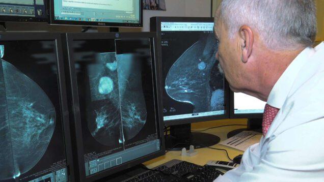 Prevención cáncer de mama – Unidad de la Mujer