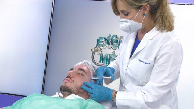 Tratamiento del acne – Excelencia Medica TV