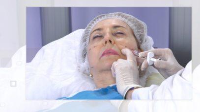 Tratamiento contra el envejecimiento facial – excelencia medica tv
